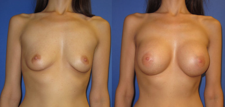 breast-augmentation-photos-1-768x367